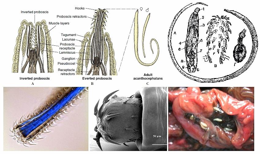 как выглядят гельминты у человека фото