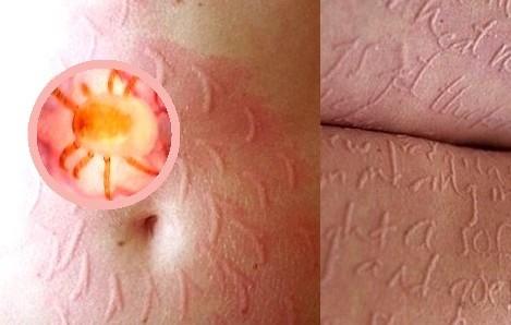 Как выглядят укусы постельных клещей