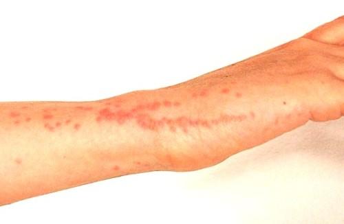 укусы домашних клопов фото клопы укусы симптомы фото укусы клопов фото симптомы укусы от постельных клопов фото
