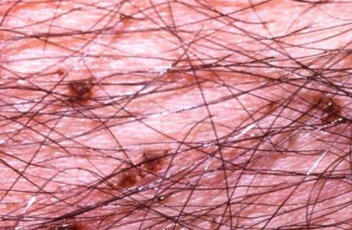 Фото, macula cerulea, лобковый педикулез