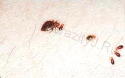 Фото укусы клопов на коже человека как лечить