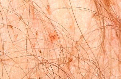 Фото. Площица, вошь лобковая , macula caeruleum