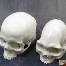 Микроцефалический череп.Фото 2